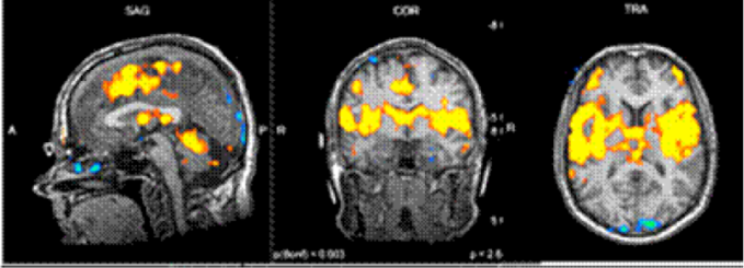 neuromatrice-douleur-brule